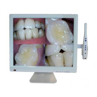 Intraoral camera M998A + LED display 19-Camera Img: 202001041
