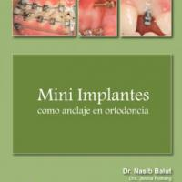 Mini implants such as anchorage in orthodontics Img: 201807031