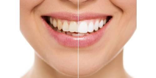 Discoloraciones dentarias