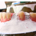 Revestimiento dental laboratorio