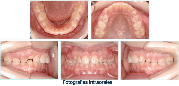 Intraoral photography