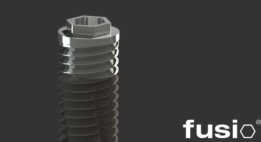 Implants Fusio de Connexion Externe