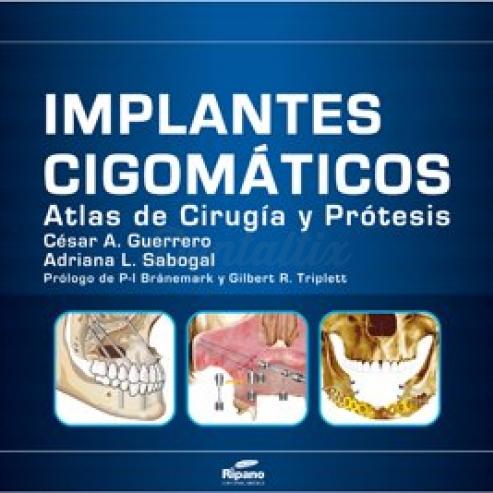 Implantes Cigomáticos Atlas de Cirugía y Prótesis  Img: 201807031