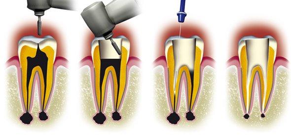 succesful endodontic treatment