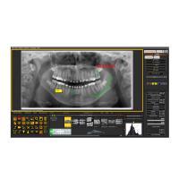 Mediadent : Logiciel de gestion des images dentaires Img: 202107101