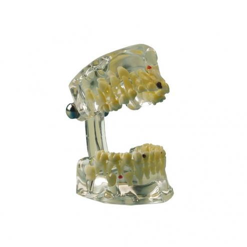 Img1: Typodont odontoiatria pediatrica - Dentatura primaria a permanente