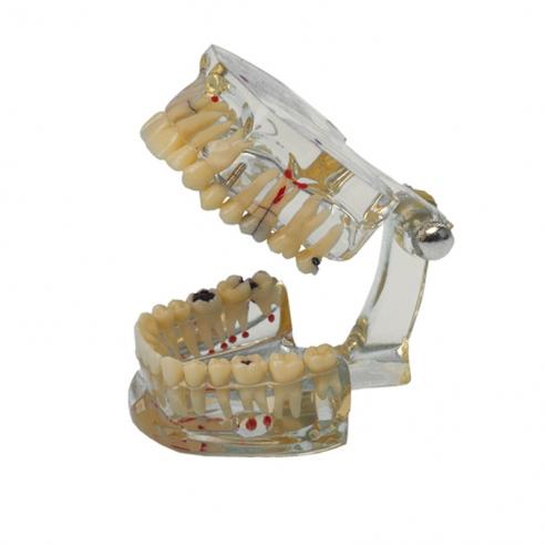 Typodont dimostrazione multi-infermità dentale Img: 201809011