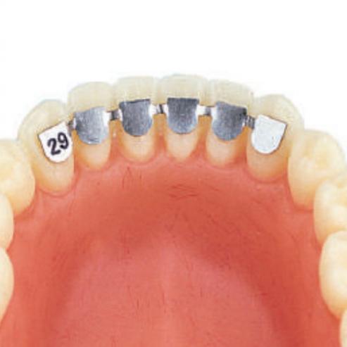 Assortimento fermi linguali ortodonzia (10u) Img: 201809011